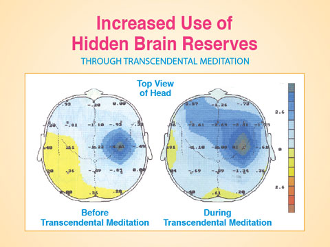 Incr-Use-Brain-Reserv